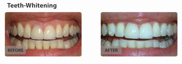 teeth-whitening-img1