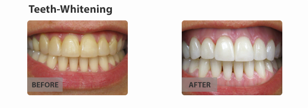 teeth-whitening-img2
