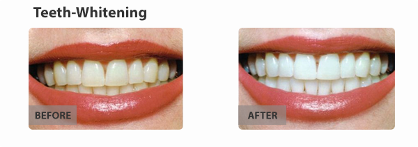 teeth-whitening-img3