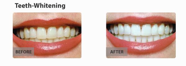 teeth-whitening-img3